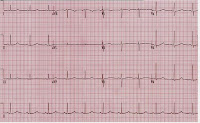 EKG of the Day (9/10)