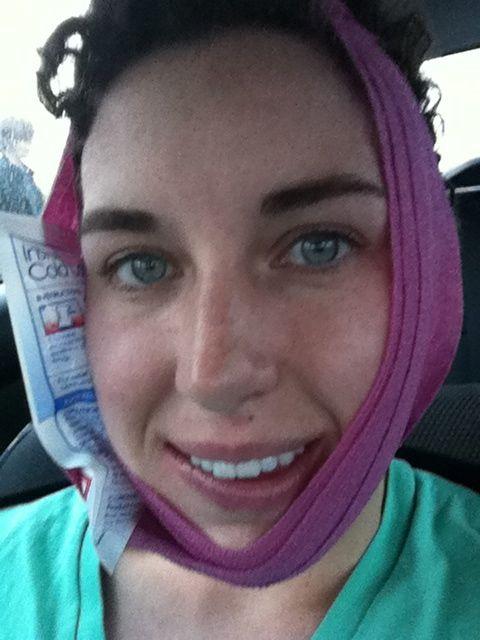 Swollen Face W   Wisdom Teeth Removal Swollen Face