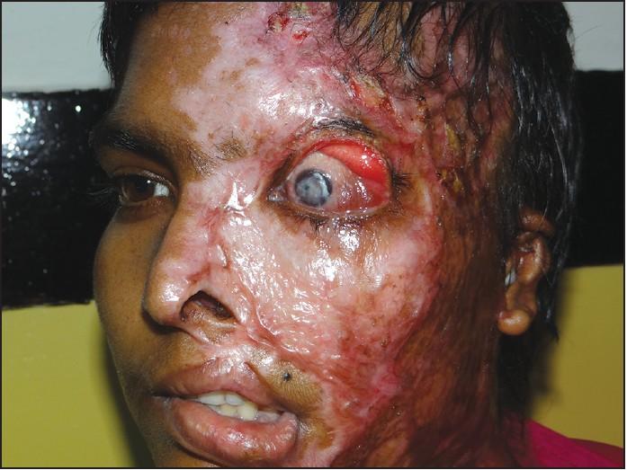 Burn Victim Http://griddownmed.com/2015/04/18/burns