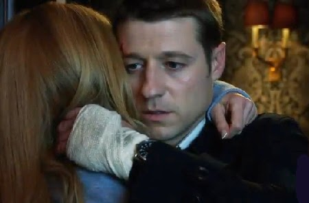 Gotham pilot Ben McKenzie Detective James Gordon soulful eyes bandaged hand hugging Barbara screencaps photos recaps review