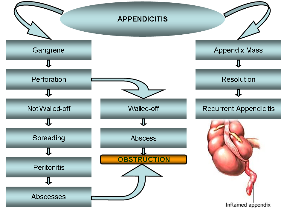 Abc radiology blog appendicitis diagnosis by ct diagram displaying appendicitis clinical course and complications ccuart Gallery