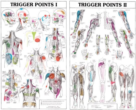 triggerpoints fibromyalgie