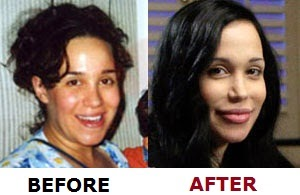 Octomom Nadya Suleman before and after Plastic Surgery