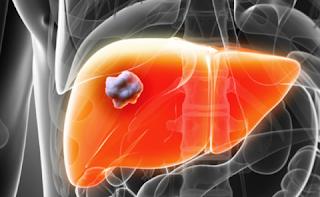 Nguyên nhân triệu chứng của bệnh ung thư gan