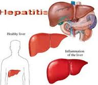 Obat Tradisional Hepatitis
