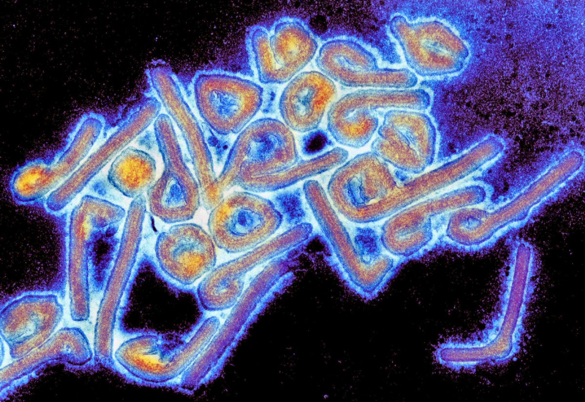 Researchers Identify Possible Marburg And Ebola Virus