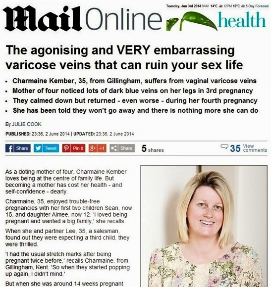 Vaginal and vulval varicose veins in Daily Mail - featuring Prof Mark Whiteley