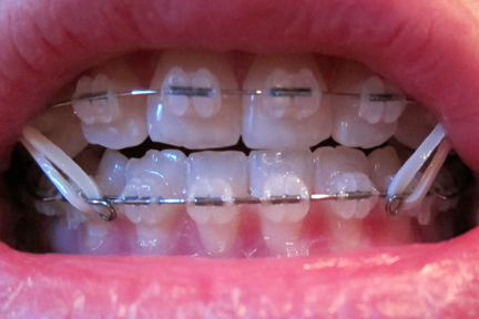 Malocclusion Class Ii. 2 Months, 2 Days