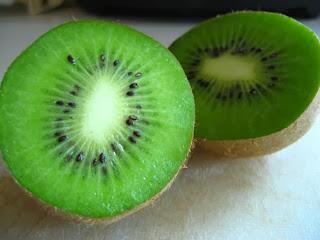5 Fakta Mengejutkan Dari Buah Kiwi