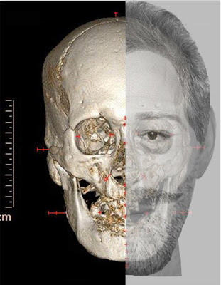 How a stab wound, a gashed nose and a pierced ear helped scientists identify a 400-year-old head as the skull of France's King Henri IV