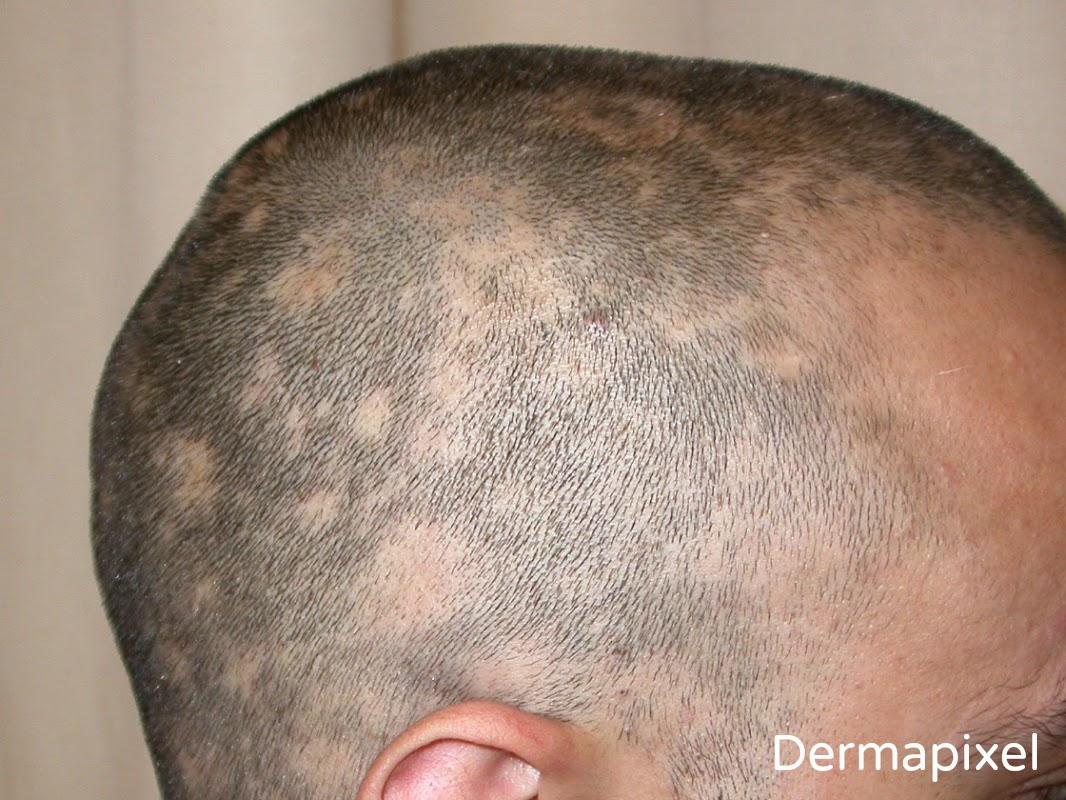 La máscara del huevo a los cabellos para el refuerzo de los cabello