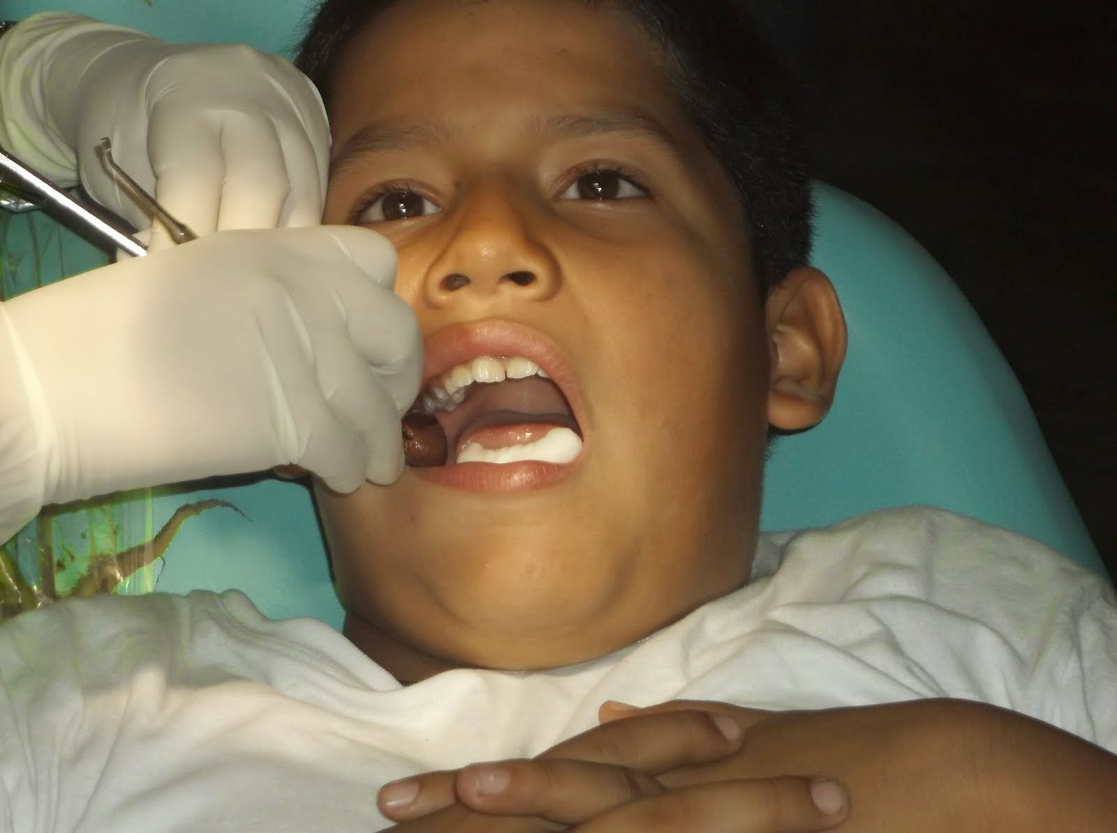 evidencias fotográficas proyecto de odontologia