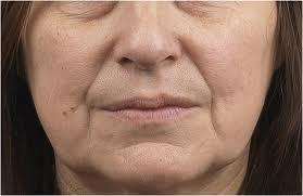 remedies skin and laser