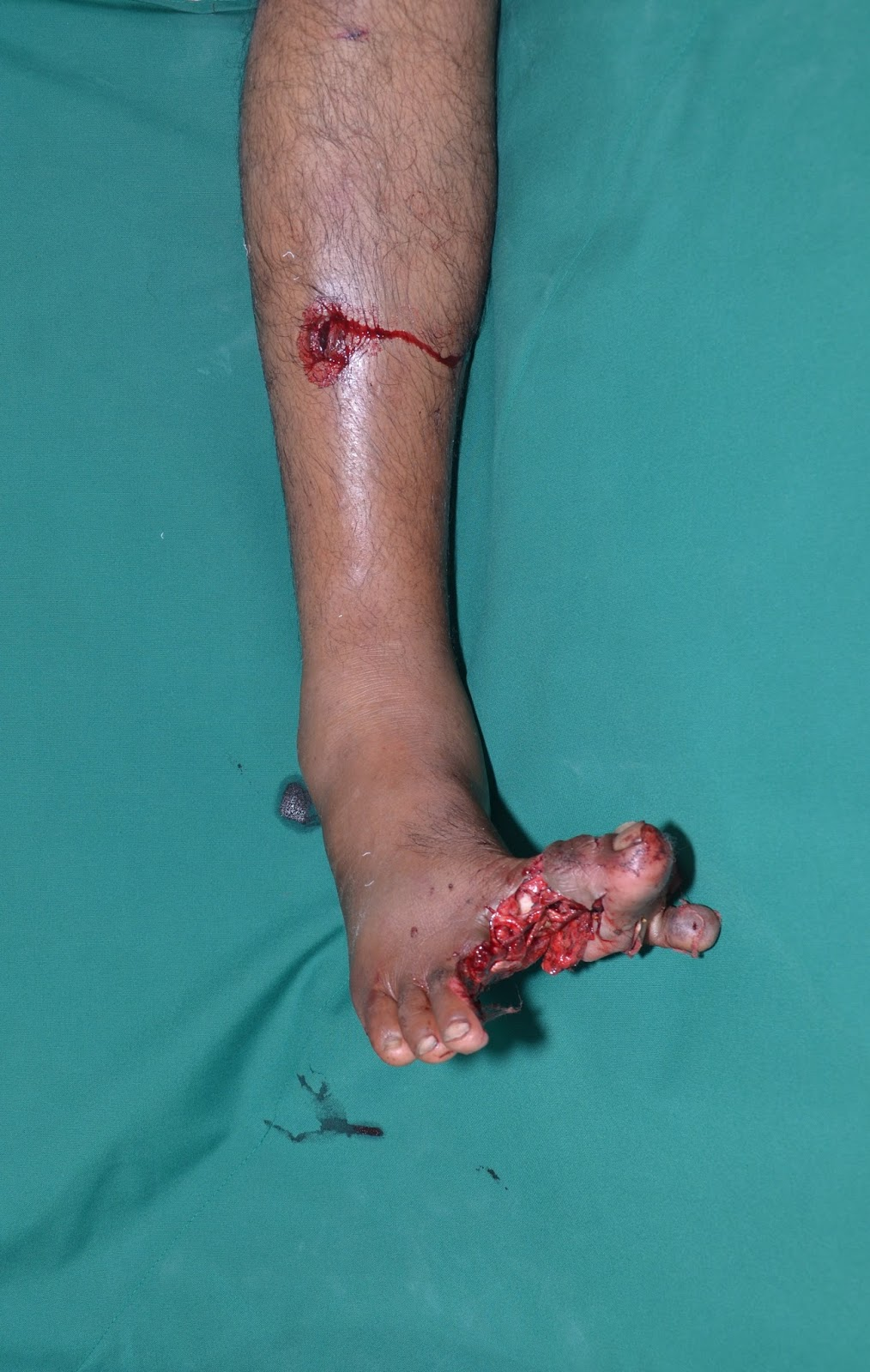 - GRADE III B FRACTURE TIBIA - MICROVASCULAR FREE FLAP - OUTCOME-2.bp.blogspot.com