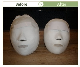 Face resizing care review