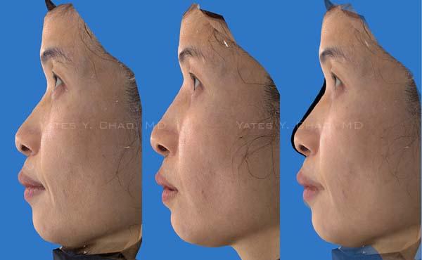 Hydermis, 水微晶, 玻尿酸, 微晶瓷, Radiesse鼻形雕塑 隆鼻