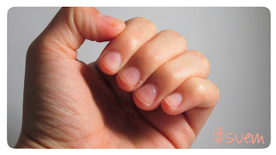 Tips para el cuidado de las uñas
