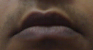 Cara Mengatasi Bibir Hitam Menjadi Lebih Merah Secara Alami