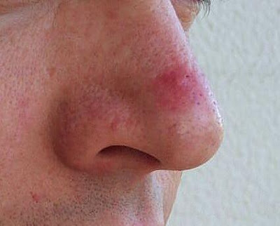 Pimple on the Nose - Common Myths and Truths