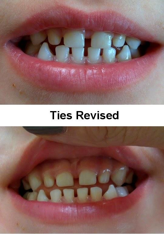 upper lip stuck between teeth