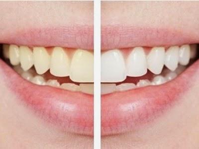 Tips Gigi Putih