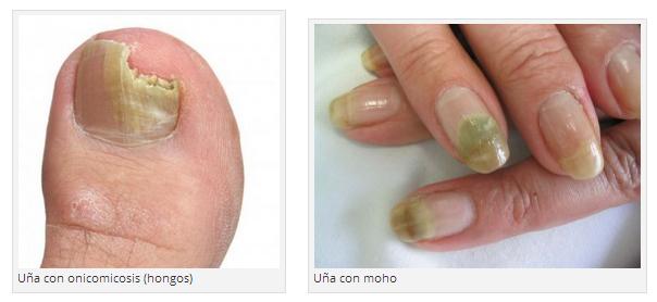 El hongo enmohecido pero las uñas de los pies