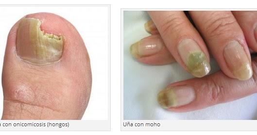 El cambio de la forma de las uñas en los pies el tratamiento