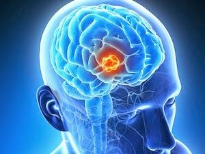 Brain Tumor Symptoms, Diagnosis And Treatment