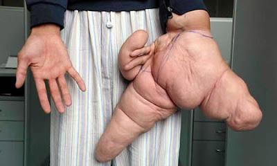 Largest Hand