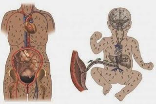 penyakit sipilis/Raja Singa pada wanita,sifilis