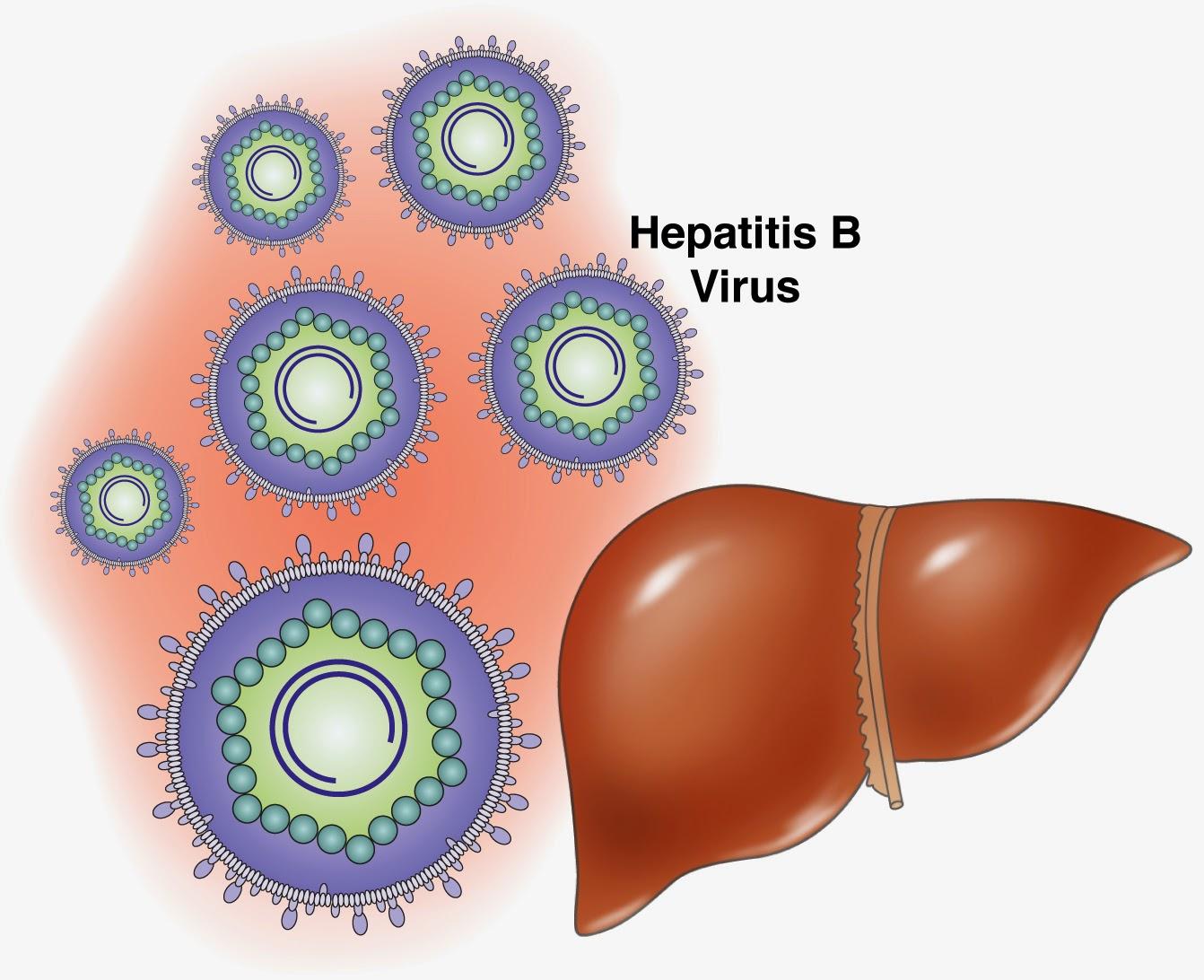 Bahaya Bagi Ibu dan Bayi Jika Ada Hepatitis B Dalam Kehamilan