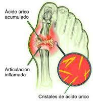 el alcohol y el acido urico urato acido urico basso exceso de acido urico gota
