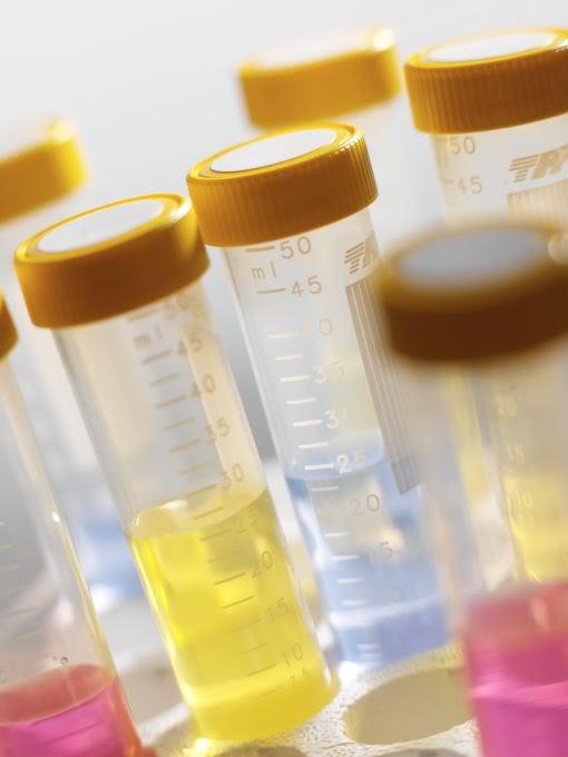 Zat Warna Bakteri dan Spora