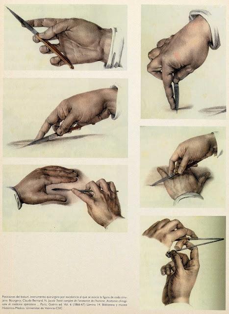 cirujano, posicion manos, grabado