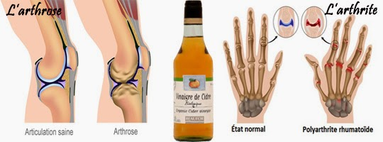 vinaigre de cidre et l'arthrose