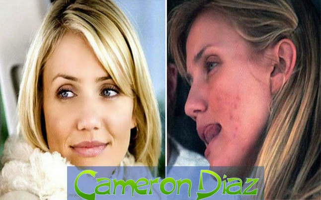 10 of the Celebrities With Acne