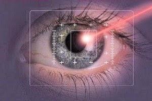 Lasik Mata   Operasi Lasik   Operasi Lasik Mata