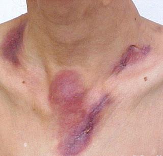 Informatii medicale despre scrofuloderma