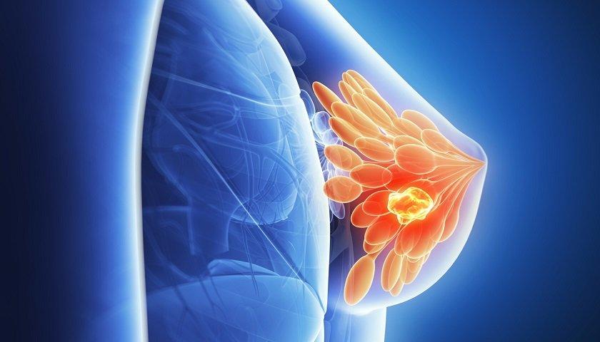 Detectar cáncer con un examen de orina