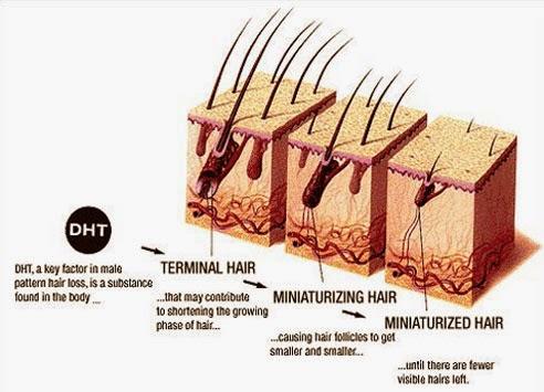 Miri Boheme Hair Regrowth Journey My Solution Minoxidil