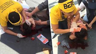 Pelancong jatuh di tengah Bersih 4.0