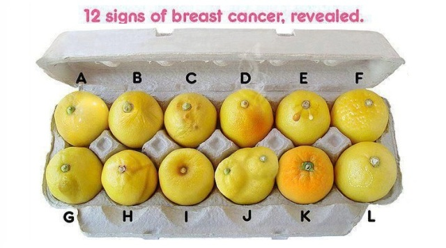 signs of breast cancer perfectly explained