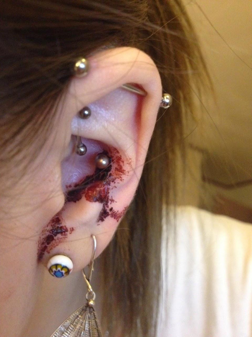 betændelse i øret