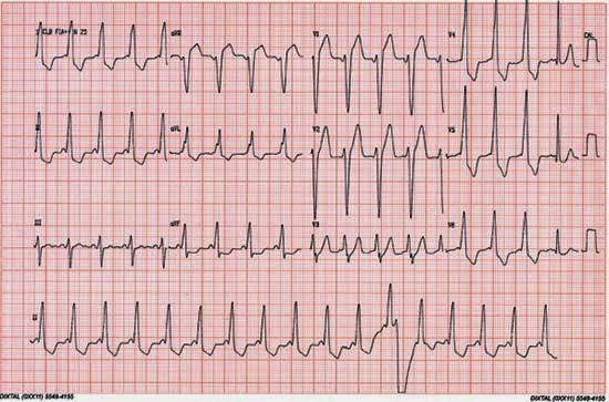 ECG: trouver le probleme! ECG+1