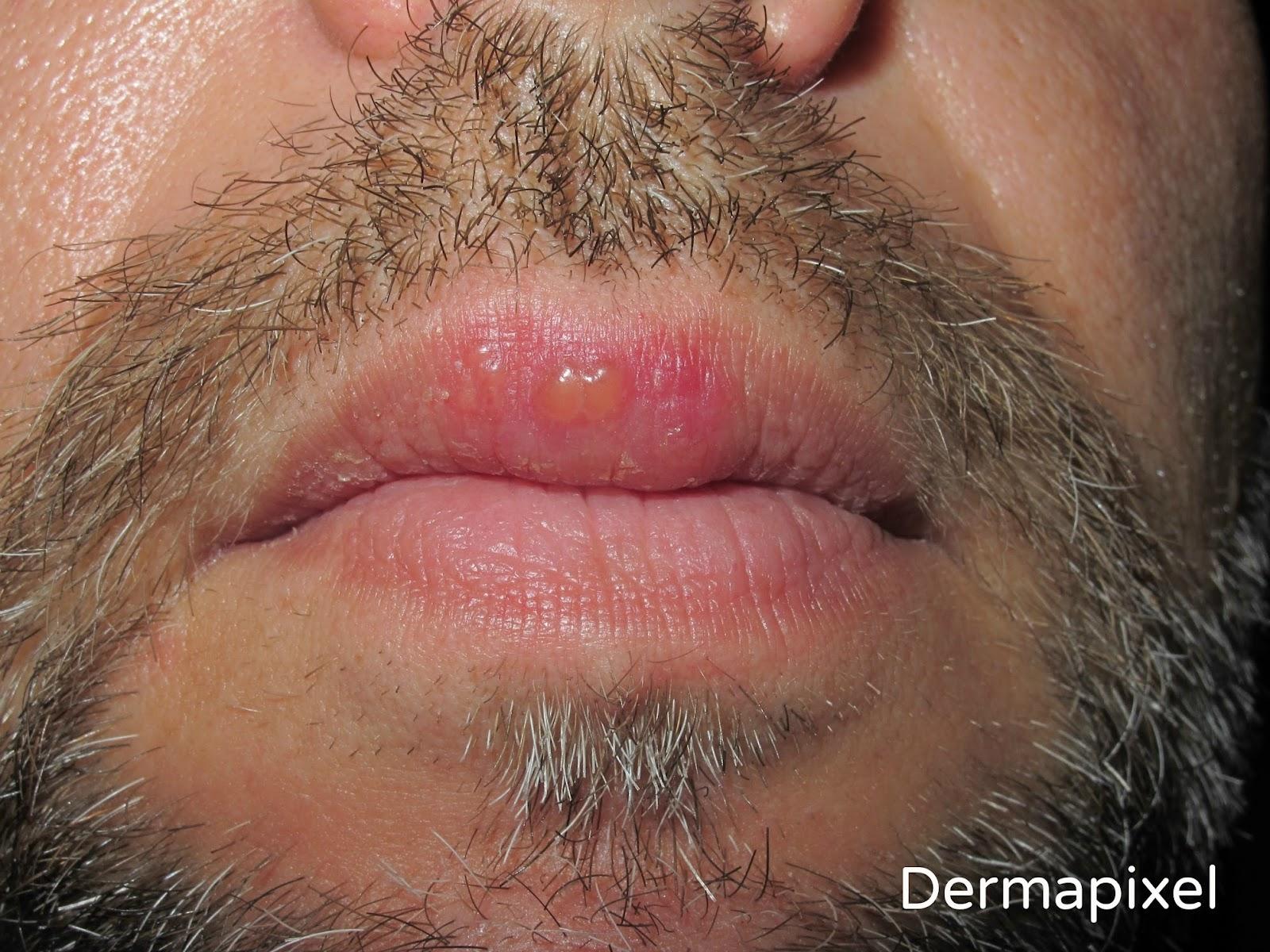 Picor de labios
