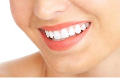 Cara Alami Untuk Memutihkan Gigi