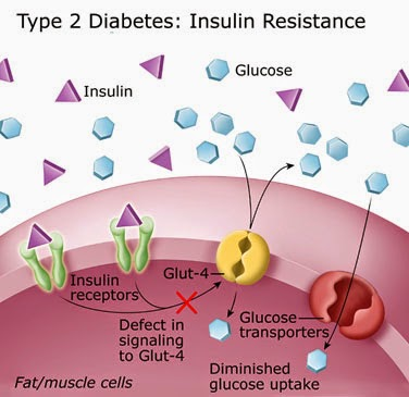 type 2 diabetes mellitus definition