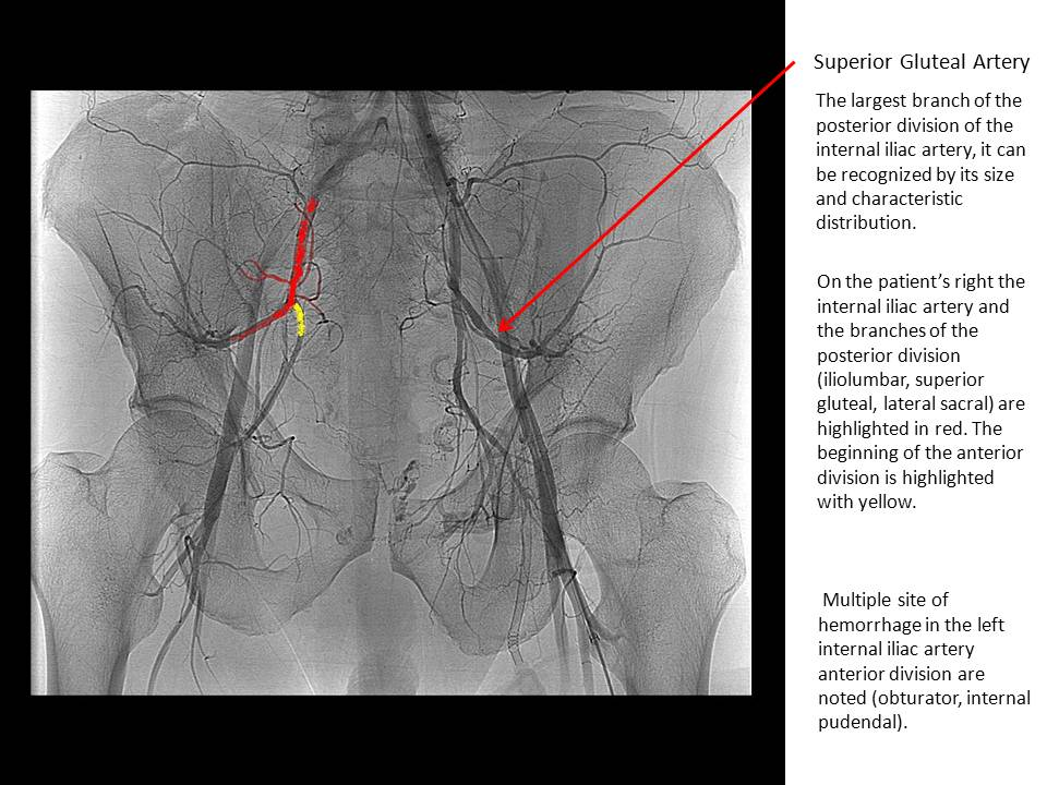 The Pump And The Tubes Internal Iliac Artery Posterior Division