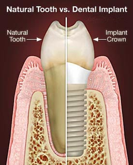 jamnagar dentist, dentist jamnagar, implantologist jamnagar, advantage of implant