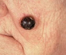 images of skin cancer